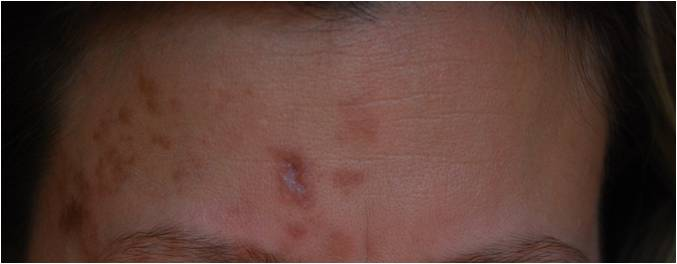 How To Get Rid Of Shingles Scars Fast Home Remedies Jdy